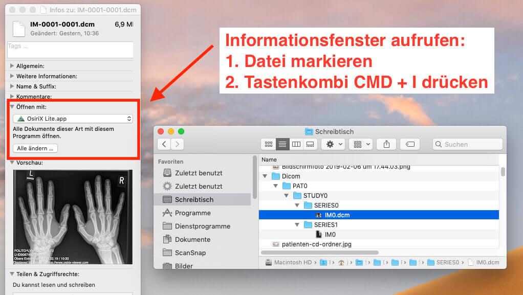 Über das Informationsfenster im Finder (MAC) läßt sich festlegen, dass dcm-Dateien in Zukunft immer mit dem OsiriX DICOM Viewer geöffnet werden.