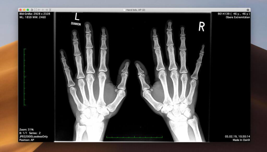 Der DICOM Viewer Osirix Lite ist die kostenlose Variante der OsiriX-Software, die für Patienten verwendet werden kann. Das Betrachten der MRT- oder Röntgenaufnahmen ist damit kein Problem – sowohl am Mac als auch am Windows-PC.
