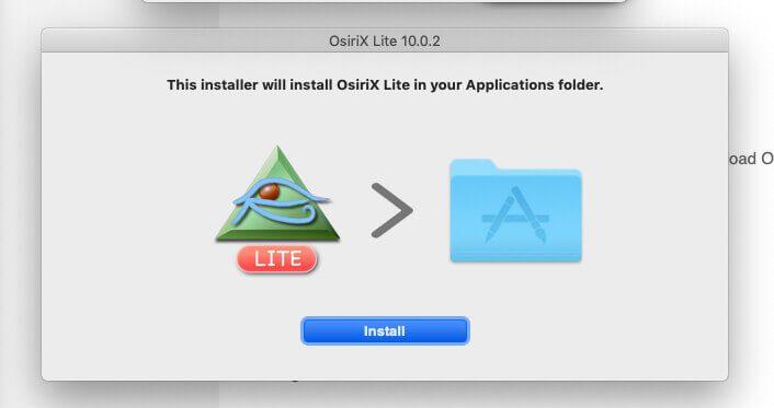 Bei der Installation von OsiriX Lite erwartet der Mac die Eingabe des Admin-Passworts.